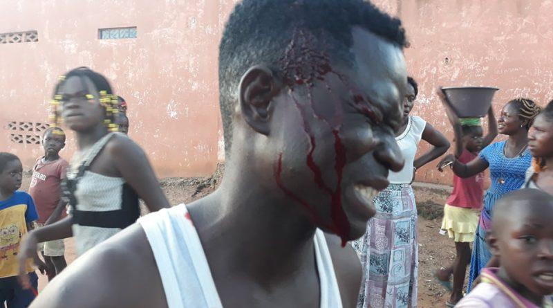 """Na Lunda-Norte: Polícias torturam cidadão para """"impor"""" Estado de Emergência"""
