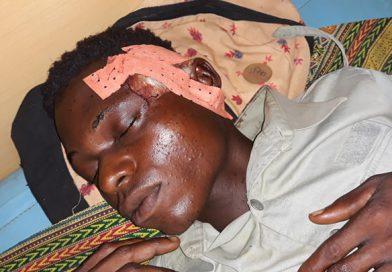 """No Cuango: Jovem de 19 anos internado com gravidade depois de ser violentado por agentes de segurança """"Kadyapemba"""""""